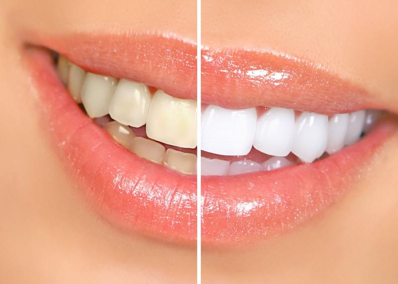 Teeth Whitening  Savage, MN